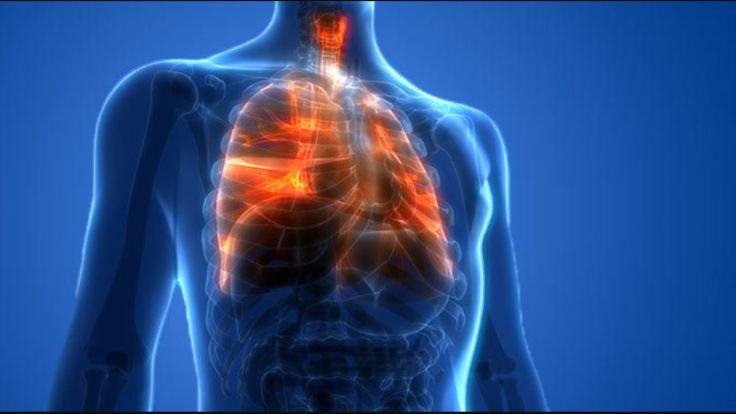 lesione-polmonare-da-svapo